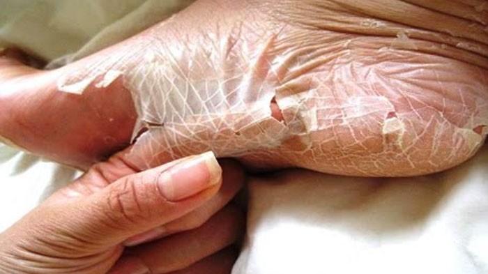 2. Możesz zrzucić skórę, niczym wąż.