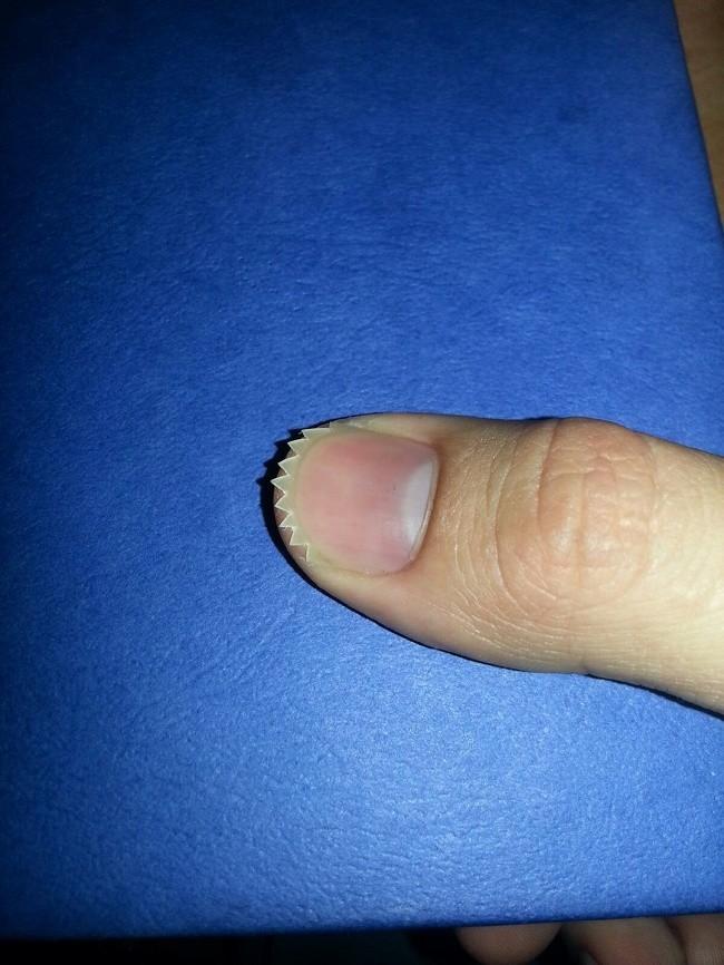Mam manie obgryzania paznokci