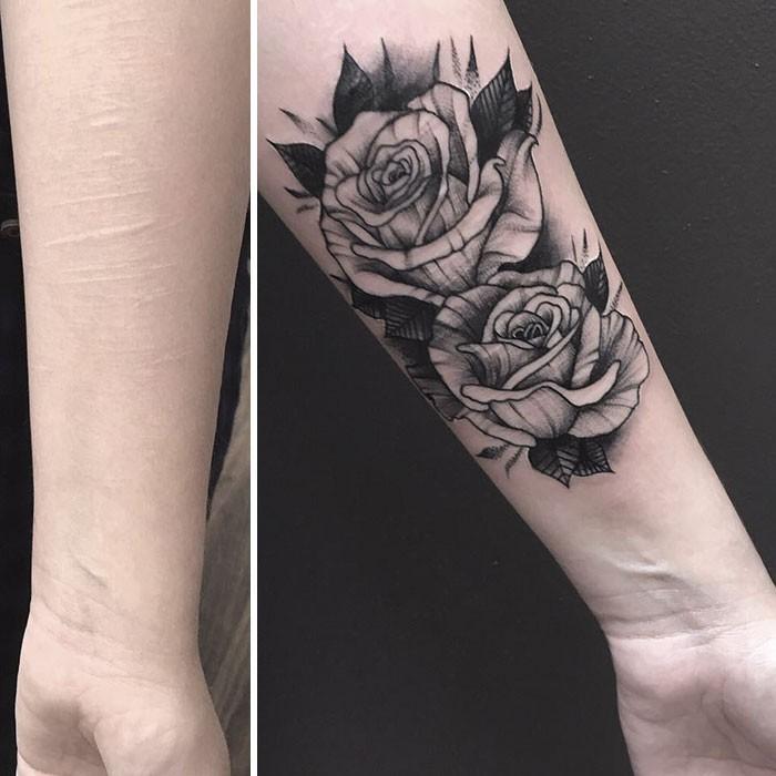 żaden Tatuażysta Nie Chciał Zakryć Blizn Szpecących Ciało