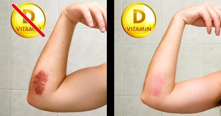 6. Powolne gojenie ran