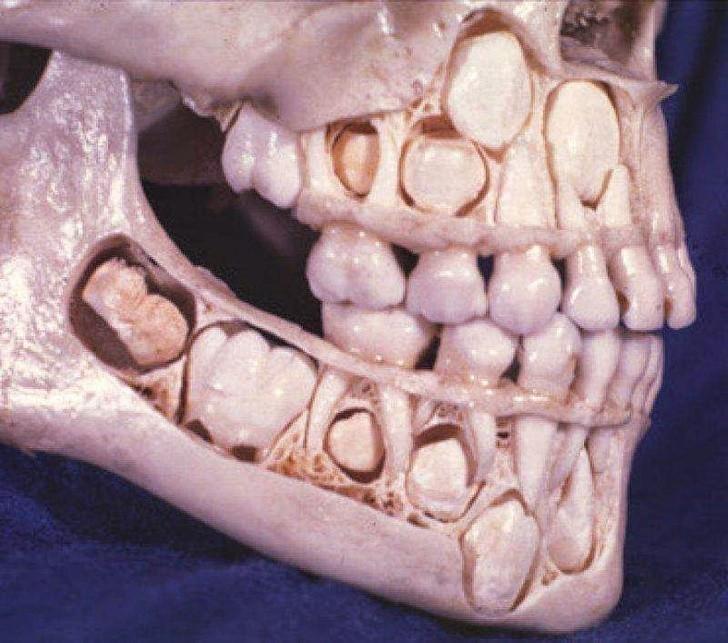 12. Teraz wiemy gdzie przed wyrośnięciem znajdują się zęby stałe.