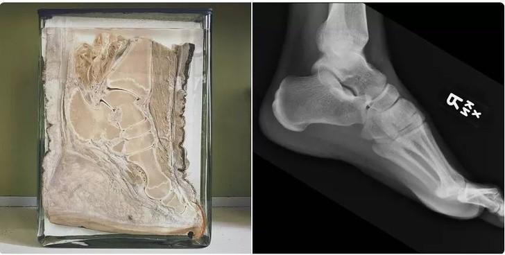 10. Porównanie stopy słonia i człowieka.