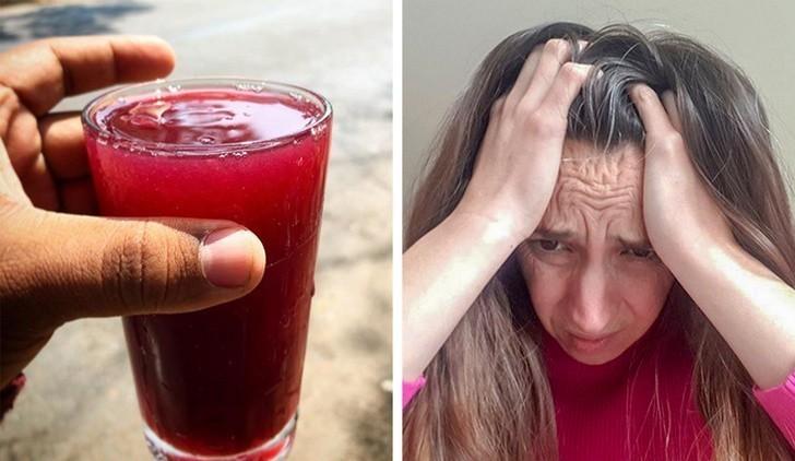 1. Sok winogronowy pomoże ci pozbyć się ataków migreny
