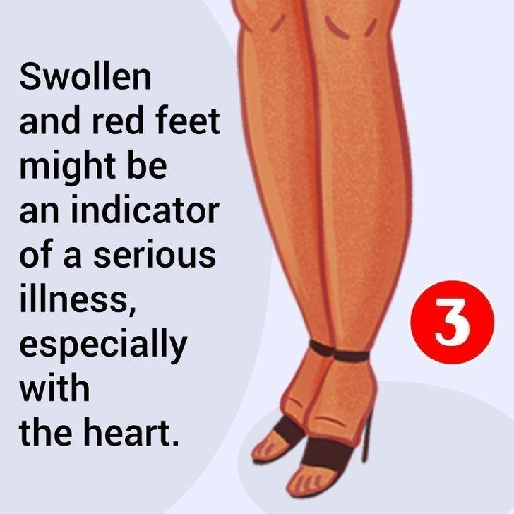 5. Spuchnięte i zaczerwienione stopy mogą być oznaką poważnych problemów z sercem.
