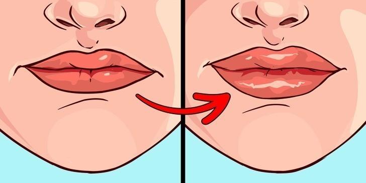 7. Spuchnięte usta