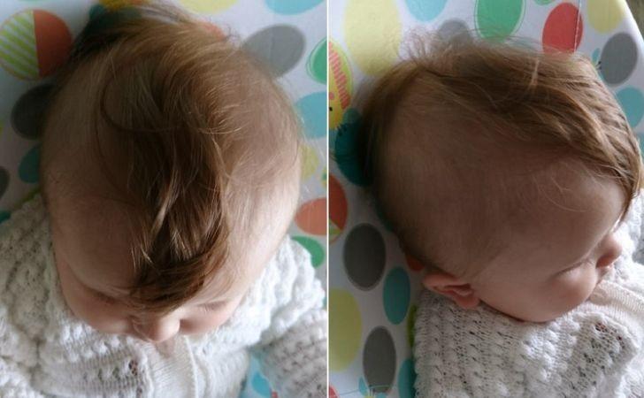 """""""Mojej córce wypadają włosy, przez co ma teraz małego irokeza."""""""
