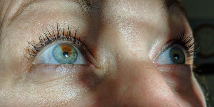 """""""Mama mojej znajomej ma szarozielone oczy, a prawe ma dodatkowo znamię."""""""