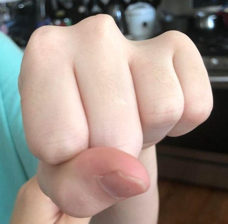 """""""Moja siostra urodziła się bez jednego knykcia. Jej palec wciąż funkcjonuje, ale jest krótszy."""""""