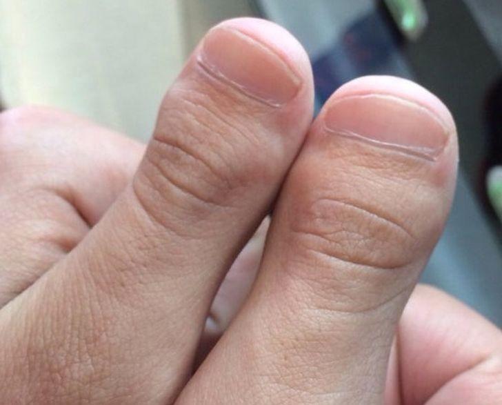"""""""Moje kciuki wyglądają jak palce stóp."""""""
