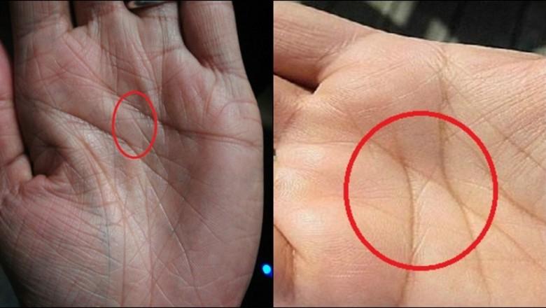 Jeśli Na Twoich Obu Dłoniach Znajduje Się Wyraźny Symbol X To Nie